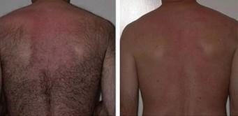 兰州崔大夫医疗美容诊所激光背部脱毛的术后护理