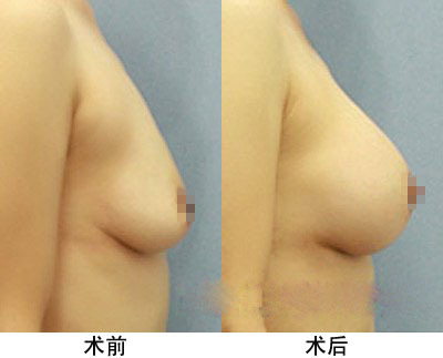 昆明市中医医院整形美容科假体隆胸手术的术后护理