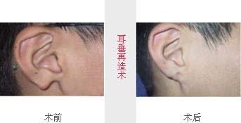 兰州崔大夫医疗美容诊所耳垂再造术的注意事项