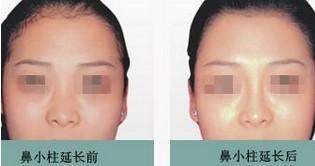 兰州长青佳黛医疗美容鼻小柱延长的术后护理