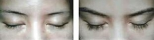 兰州芦蔓莉美医疗美容睫毛种植的适用人群