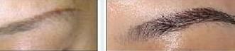 兰州芦蔓莉美医疗美容眉毛种植的恢复时间