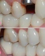 兰州崔大夫医疗美容诊所种植牙的禁忌症