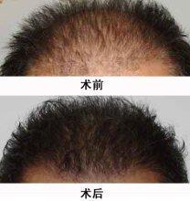 昆明市中医医院整形美容科头发种植术的特点