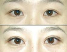 昆明市中医医院整形美容科睫毛种植术的效果