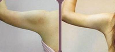 昆明盘龙区中医院上臂吸脂的恢复要很久吗