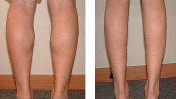 昆明盘龙区中医院小腿吸脂也有一些副作用