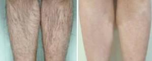 兰州激光脱小腿毛的对比图