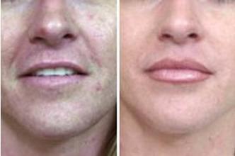 兰州崔大夫医疗美容诊所口角成形术的术前准备