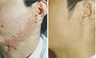 昆明盘龙区中医院激光祛疤用什么技术除疤
