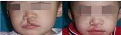 兰州唇腭裂修复的对比图
