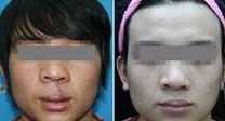 兰州唇裂修复术的对比图