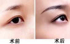阜阳伊尔美纯韩整形医院眉毛种植的特点有哪些