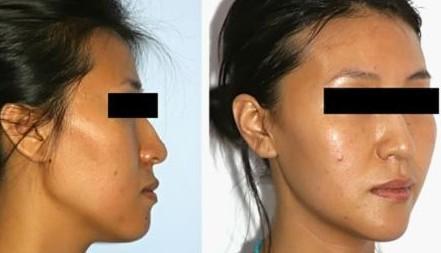 阜阳伊尔美纯韩整形医院下颌角整形术前的注意事项有哪些