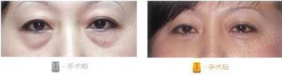 阜阳伊尔美纯韩整形医院韩式无痕祛眼袋术的优势有哪些