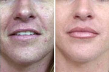 昆明市中医医院整形美容科唇珠成形术的术后护理