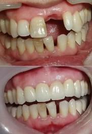 昆明盘龙区中医院种植牙需要进行的口腔检查