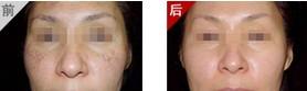 兰州芦蔓莉美医疗美容彩光祛老年斑的优势
