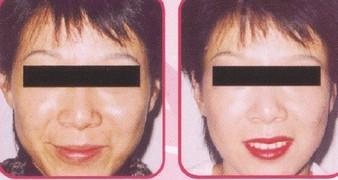 兰州芦蔓莉美医疗美容光子嫩肤的术后护理