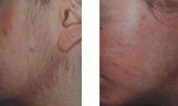 兰州芦蔓莉美医疗美容光子面部脱毛的优势