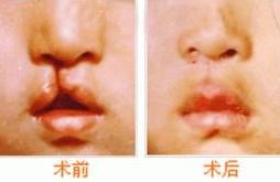 阜阳伊尔美纯韩整形医院唇裂修复术前注意哪些事项