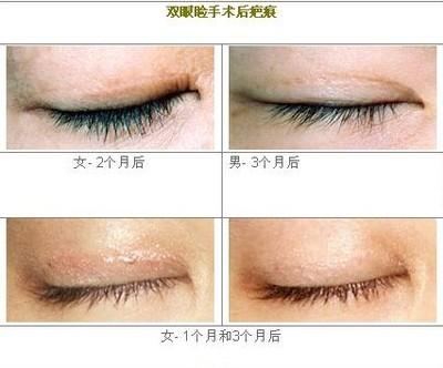 昆明市中医医院整形美容科双眼皮失败修复术的术后护理