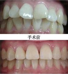 哪些影响昆明盘龙区中医院牙齿矫正的价格