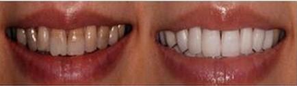 昆明盘龙区中医院冷光美白牙齿要怎么操作