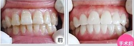 昆明盘龙区中医院超声波洁牙影响进食吗