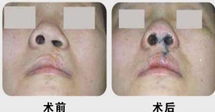 石家庄巍名仕医疗美容医院鼻孔开大术的术后注意事项