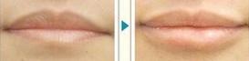 兰州自体脂肪丰唇的对比图
