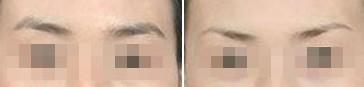 兰州芦蔓莉美医疗美容切眉术的术后护理