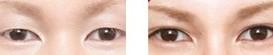 兰州芦蔓莉美医疗美容韩式双眼皮的术前注意
