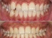 兰州长青佳黛医疗美容隐形牙齿矫正的适应症