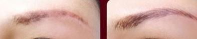 兰州芦蔓莉美医疗美容眉毛移植的价格