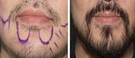 兰州芦蔓莉美医疗美容胡须移植的价格