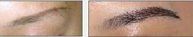 昆明盘龙区中医院眉毛种植主要有哪些原则