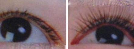 昆明盘龙区中医院睫毛种植的禁忌情况是什么