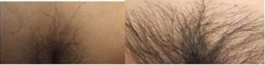 昆明盘龙区中医院阴毛种植如何进行操作