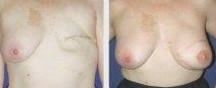 兰州乳房再造的对比图