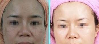 兰州长青佳黛医疗美容彩光嫩肤的术后护理
