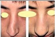 有几种人不能做襄阳夏文辉医疗诊所歪鼻整形