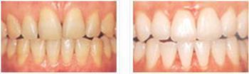 阜阳伊尔美纯韩整形医院冷光牙齿美白的适应症是什么