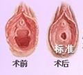 昆明市中医医院整形美容科阴唇整形术的适应症