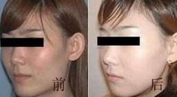 兰州长青佳黛医疗美容颧骨整形的术后护理
