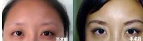 兰州长青佳黛医疗美容眉毛种植的价格
