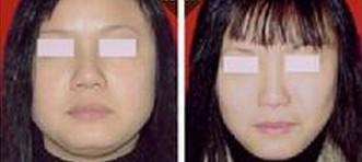 如何让襄阳夏文辉医疗诊所瘦脸针效果持久