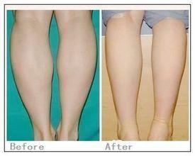 石家庄巍名仕医疗美容医院腿部吸脂术的术后护理