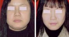 青岛妇婴整形美容医院瘦脸针的禁忌人群