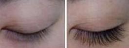 兰州睫毛移植的对比图